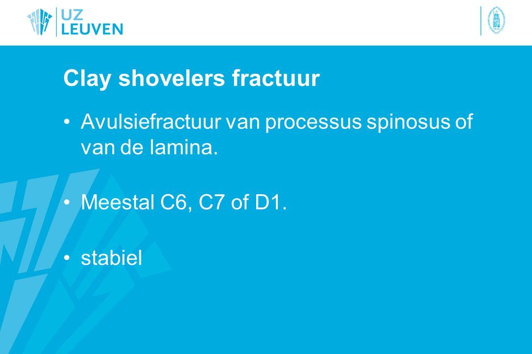 Clay shovelers fractuur Avulsiefractuur van processus spinosus of van de lamina.