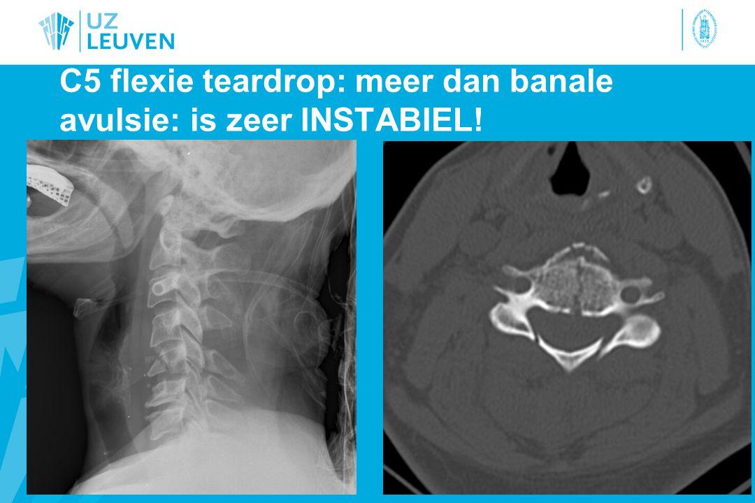 C5 flexie teardrop: meer dan banale avulsie: is zeer INSTABIEL!