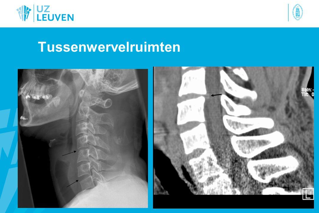 Prevertebrale weke delen C1 - C4: –Dicht tegen het wervellichaam –geen bulging –Geen verplaatsing C5: –trapstand (oesophagus): 1,5 cm.