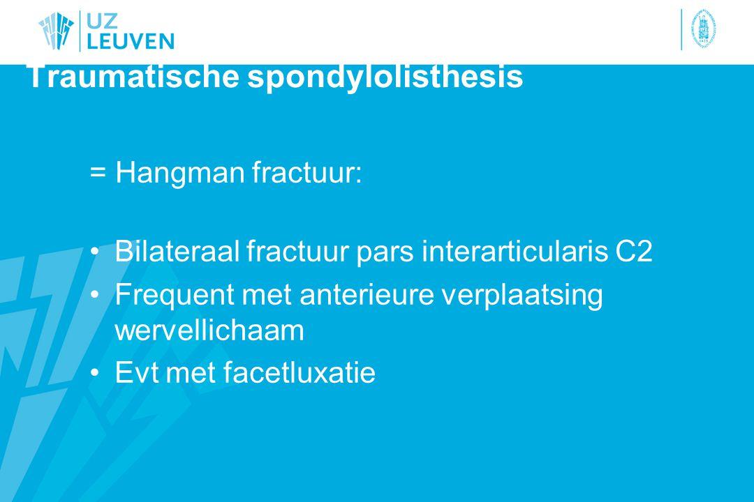 Traumatische spondylolisthesis = Hangman fractuur: Bilateraal fractuur pars interarticularis C2 Frequent met anterieure verplaatsing wervellichaam Evt met facetluxatie