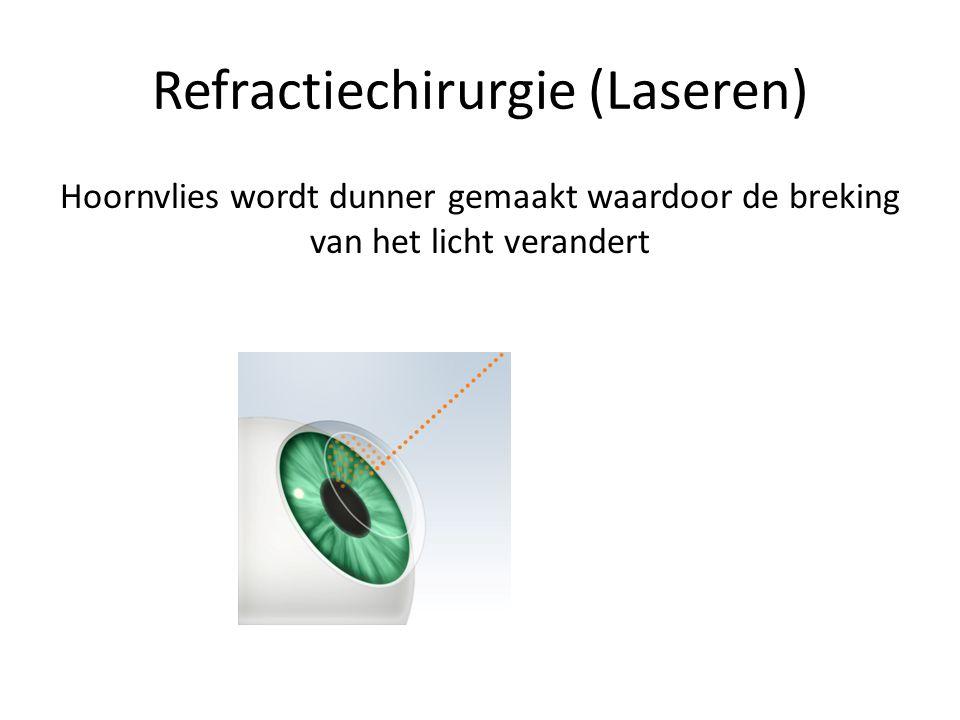 Refractiechirurgie (Laseren) Hoornvlies wordt dunner gemaakt waardoor de breking van het licht verandert