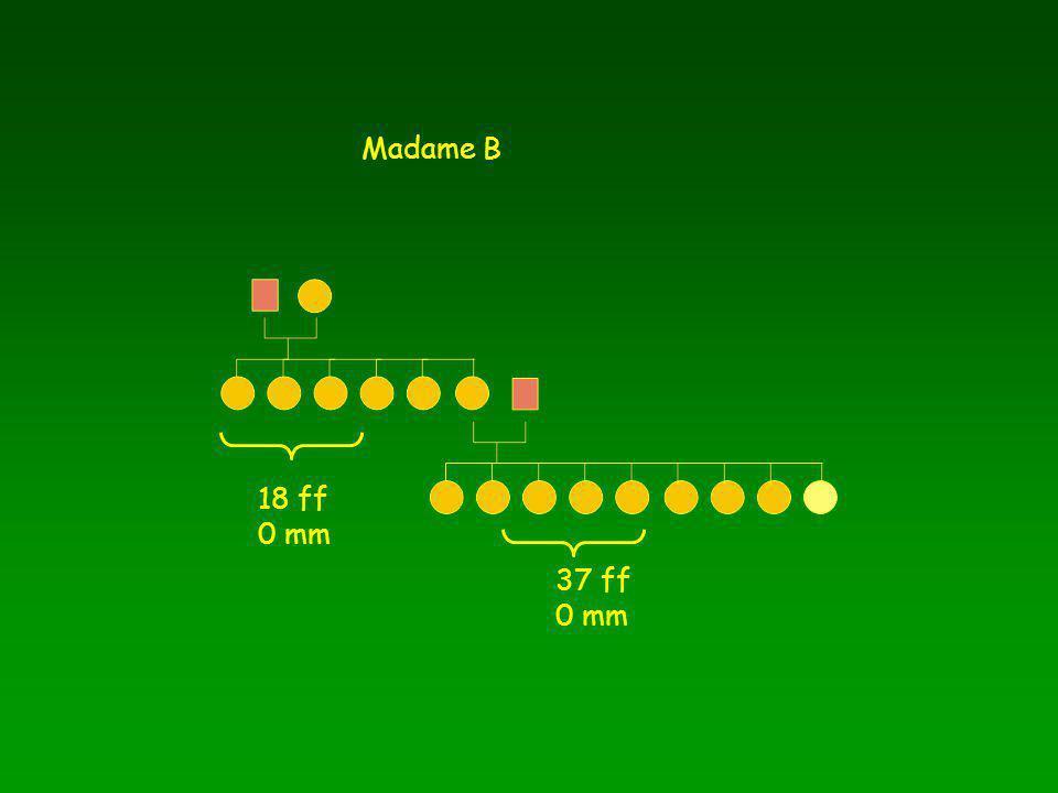 18 ff 0 mm 37 ff 0 mm Madame B