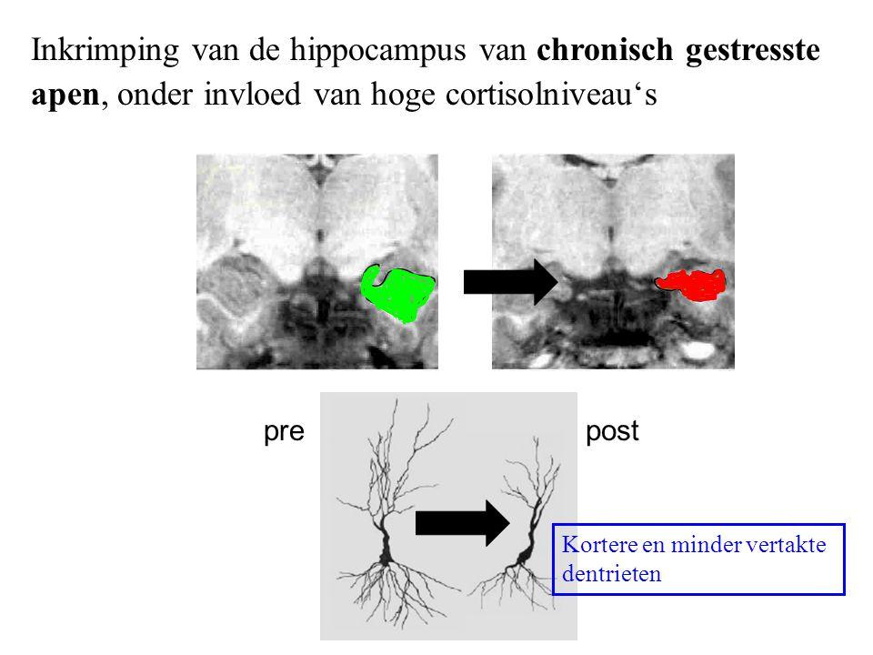 Inkrimping van de hippocampus van chronisch gestresste apen, onder invloed van hoge cortisolniveau's prepost Kortere en minder vertakte dentrieten