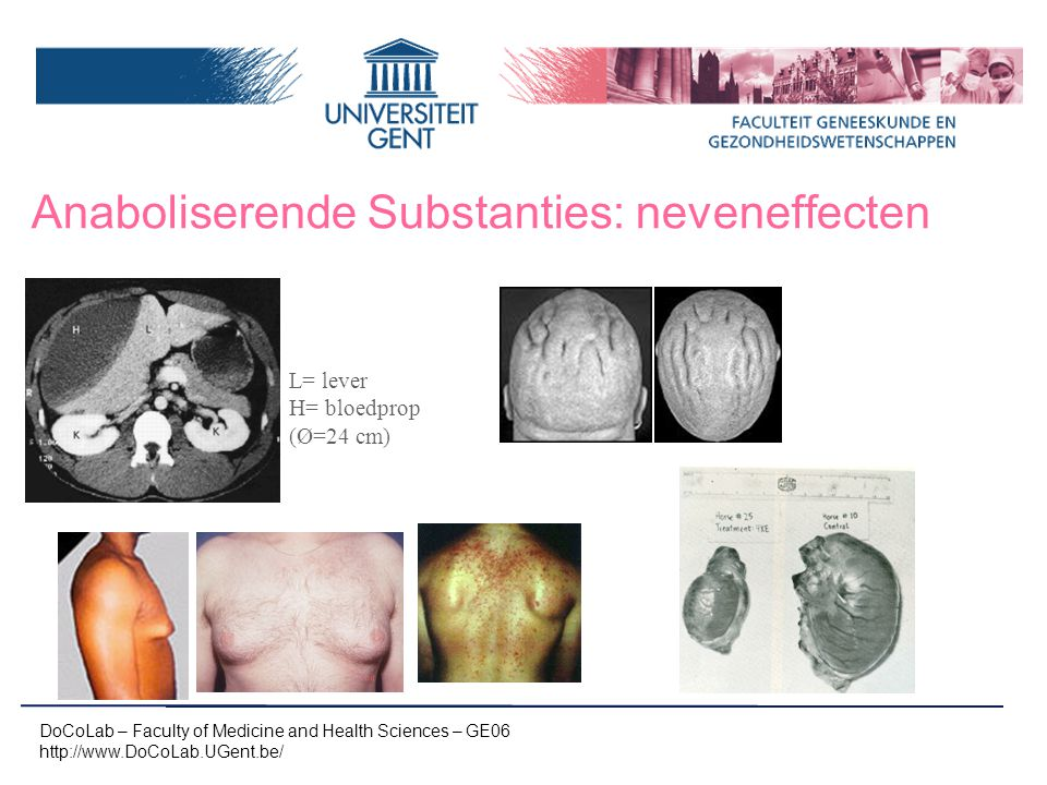 Anaboliserende Substanties: neveneffecten DoCoLab – Faculty of Medicine and Health Sciences – GE06 http://www.DoCoLab.UGent.be/ L= lever H= bloedprop