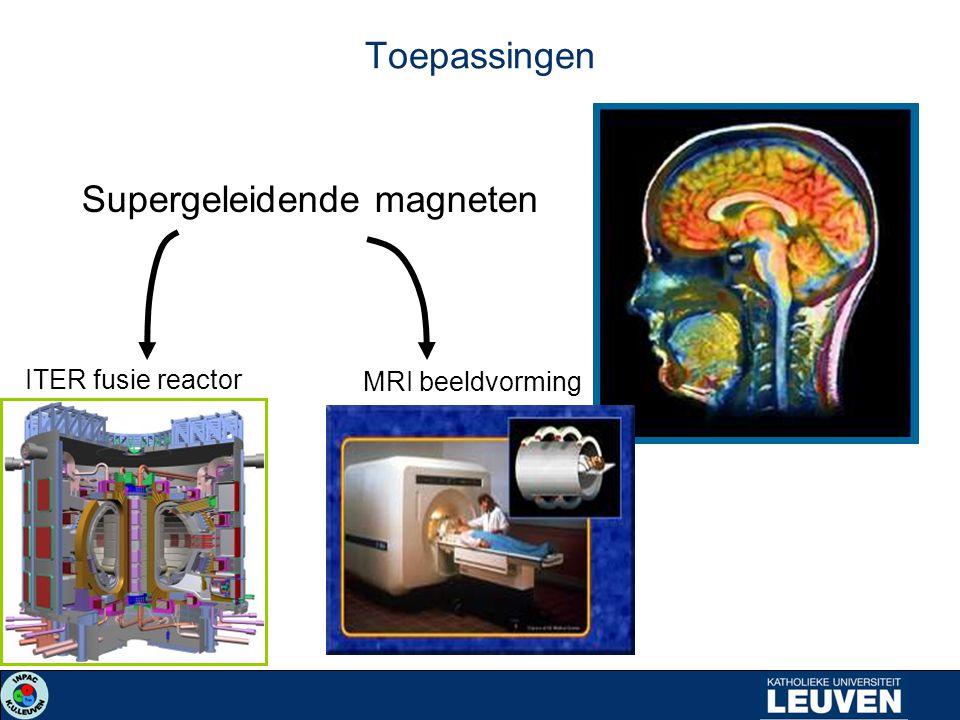 Supergeleidende magneten ITER fusie reactor MRI beeldvorming Toepassingen