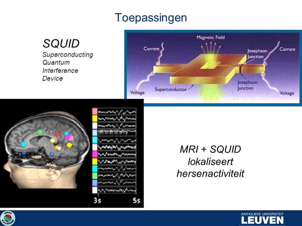 MRI + SQUID lokaliseert hersenactiviteit SQUID Superconducting Quantum Interference Device Toepassingen