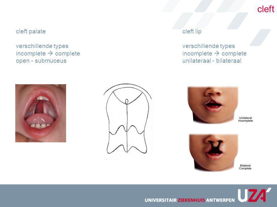 cleft cleft palate verschillende types incomplete  complete open - submuceus cleft lip verschillende types incomplete  complete unilateraal - bilate
