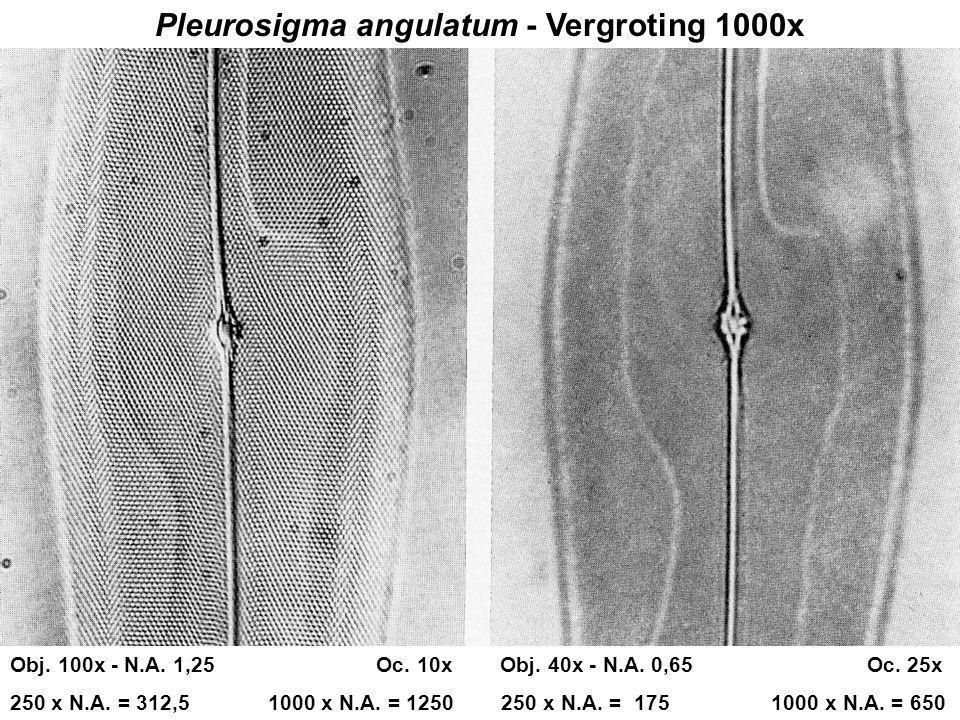 Pleurosigma angulatum - Vergroting 1000x Obj. 100x - N.A. 1,25 Oc. 10x Obj. 40x - N.A. 0,65 Oc. 25x 250 x N.A. = 312,5 1000 x N.A. = 1250 250 x N.A. =