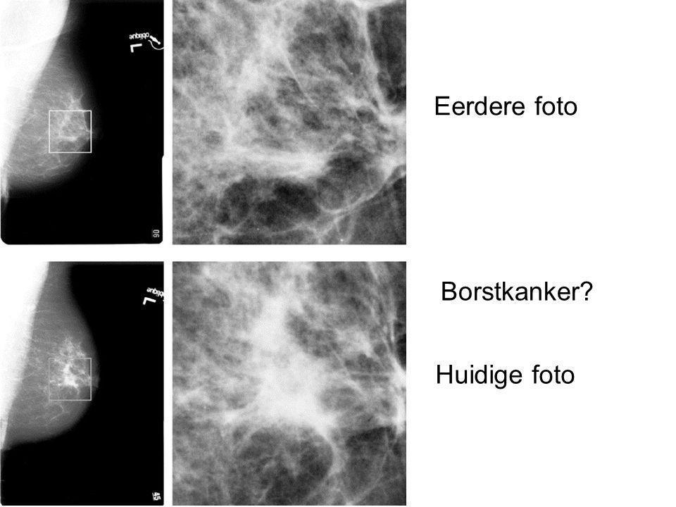 Eerdere foto Huidige foto Borstkanker?