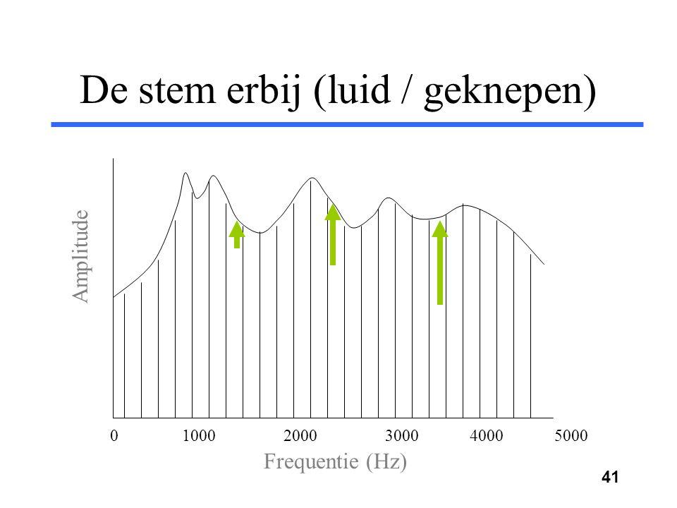 40 De stem erbij (zacht / falset) Frequentie (Hz) Amplitude 0 1000 2000 3000 4000 5000