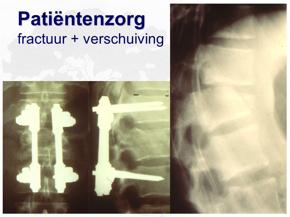 Patiëntenzorg Patiëntenzorg fractuur + verschuiving