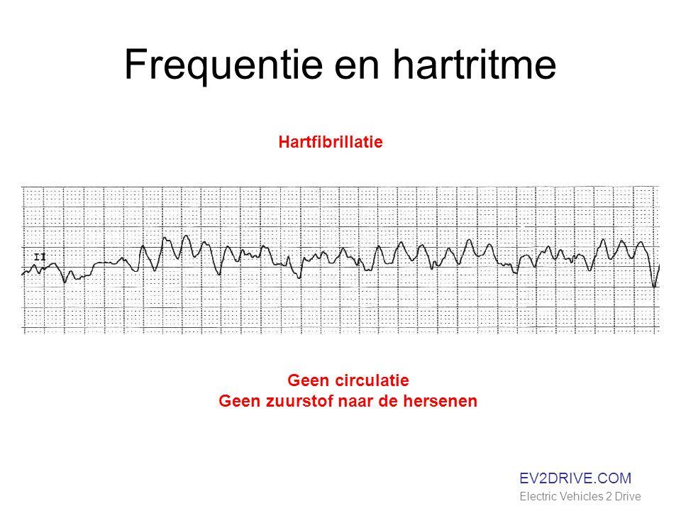 Frequentie en hartritme EV2DRIVE.COM Electric Vehicles 2 Drive Hartfibrillatie Geen circulatie Geen zuurstof naar de hersenen