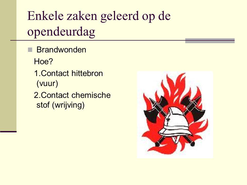 Enkele zaken geleerd op de opendeurdag Brandwonden Hoe.