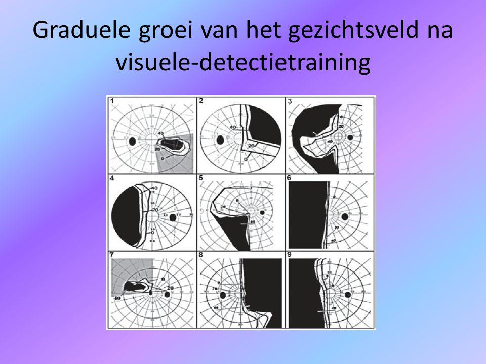 Graduele groei van het gezichtsveld na visuele-detectietraining