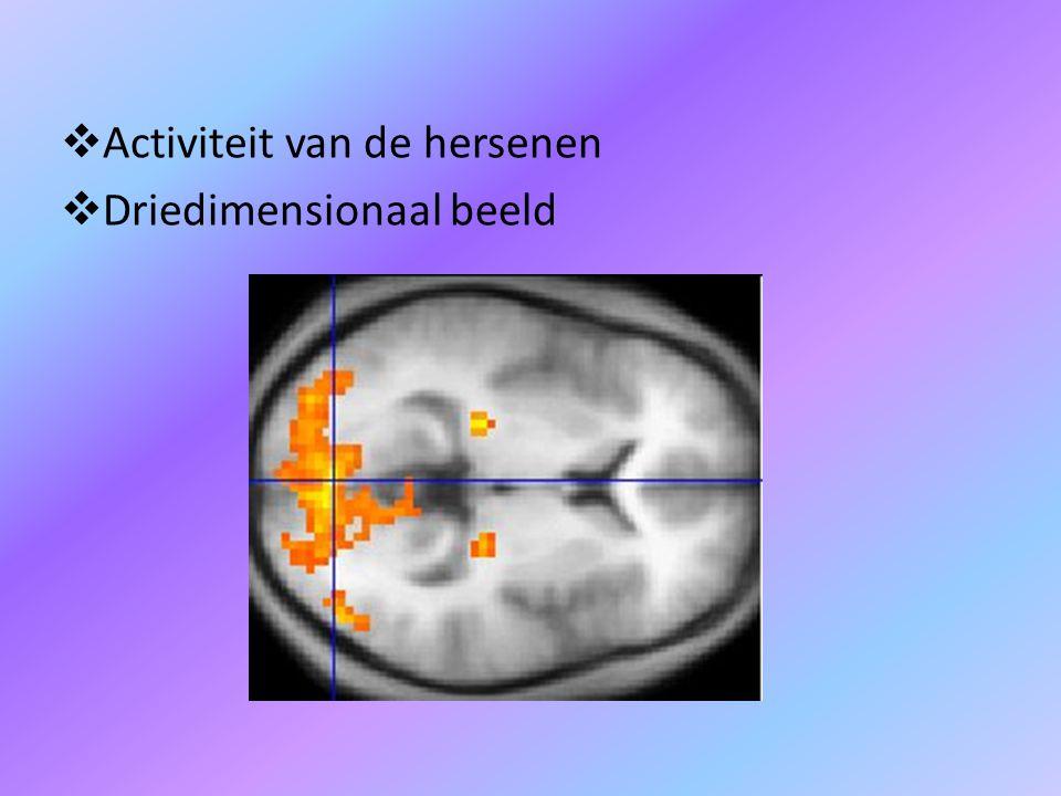  Activiteit van de hersenen  Driedimensionaal beeld