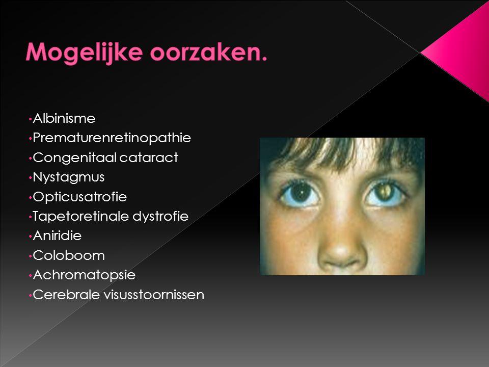 Albinisme Prematurenretinopathie Congenitaal cataract Nystagmus Opticusatrofie Tapetoretinale dystrofie Aniridie Coloboom Achromatopsie Cerebrale visu