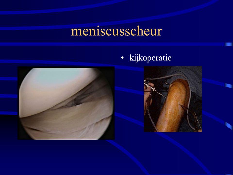 meniscusscheur kijkoperatie