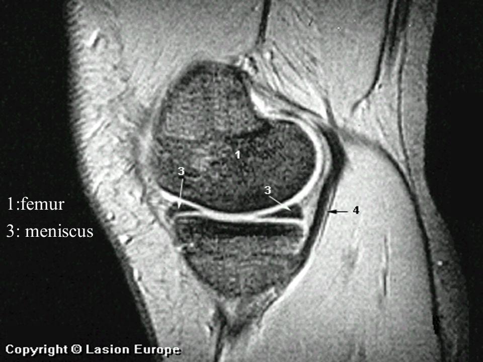 1:femur 3: meniscus