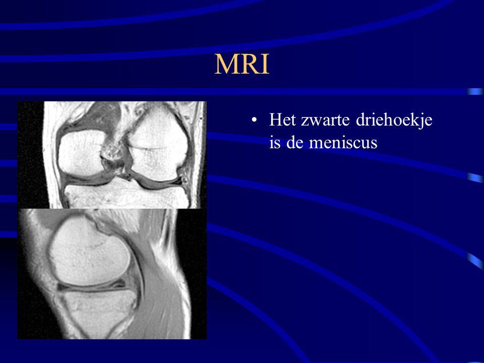 MRI Het zwarte driehoekje is de meniscus