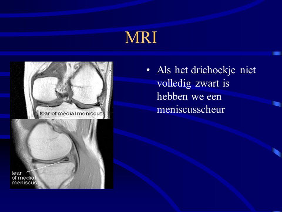 MRI Als het driehoekje niet volledig zwart is hebben we een meniscusscheur
