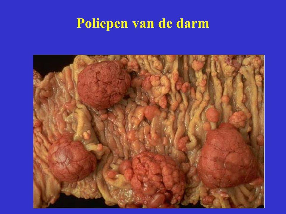 Poliepen van de darm