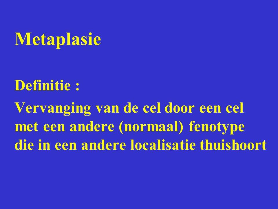 Metaplasie Definitie : Vervanging van de cel door een cel met een andere (normaal) fenotype die in een andere localisatie thuishoort