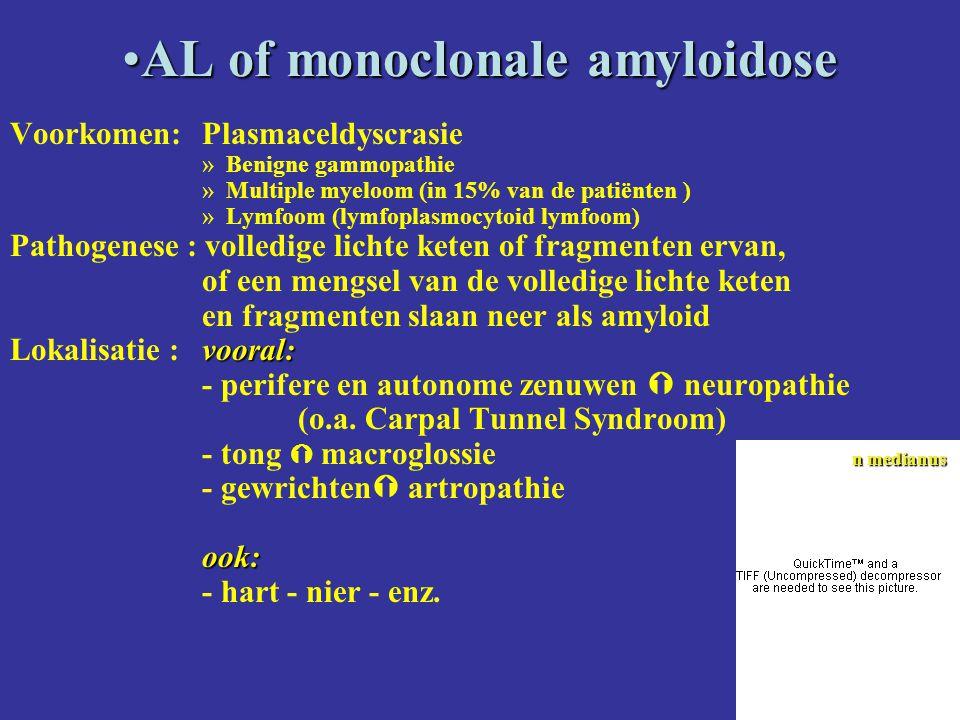 AL of monoclonale amyloidoseAL of monoclonale amyloidose Voorkomen: Plasmaceldyscrasie »Benigne gammopathie »Multiple myeloom (in 15% van de patiënten ) »Lymfoom (lymfoplasmocytoid lymfoom) Pathogenese : volledige lichte keten of fragmenten ervan, of een mengsel van de volledige lichte keten en fragmenten slaan neer als amyloid vooral: Lokalisatie :vooral: - perifere en autonome zenuwen  neuropathie (o.a.