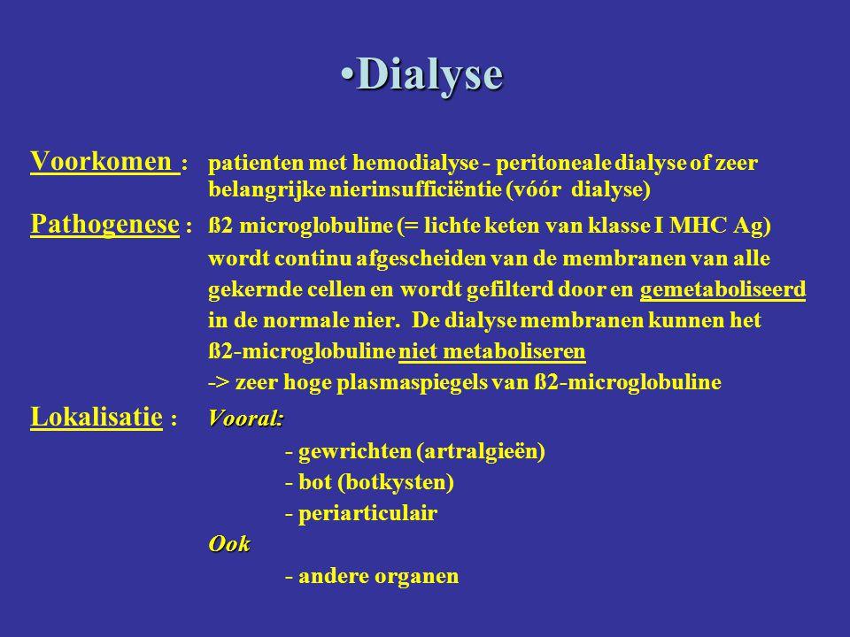 DialyseDialyse Voorkomen :patienten met hemodialyse - peritoneale dialyse of zeer belangrijke nierinsufficiëntie (vóór dialyse) Pathogenese :ß2 microg