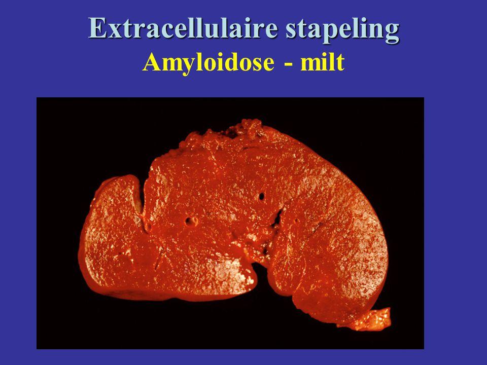Extracellulaire stapeling Extracellulaire stapeling Amyloidose - milt
