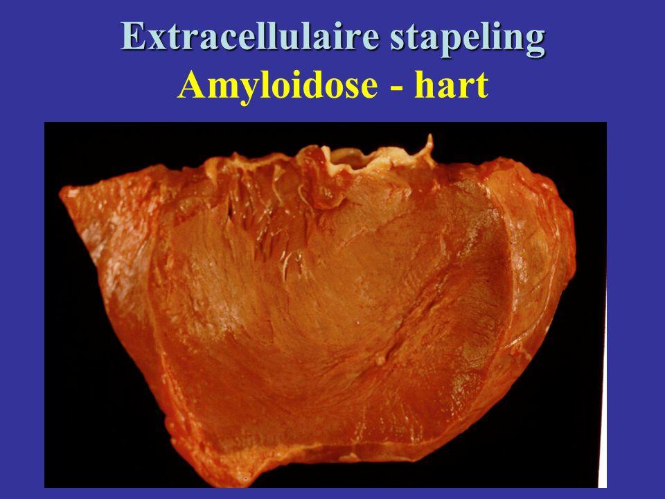 Extracellulaire stapeling Extracellulaire stapeling Amyloidose - hart