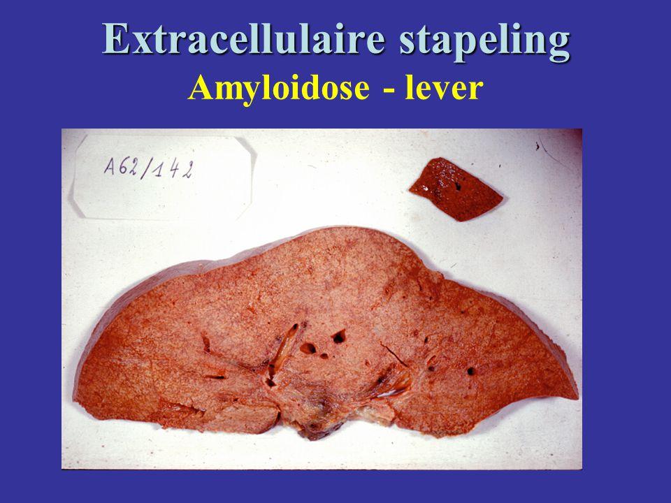 Extracellulaire stapeling Extracellulaire stapeling Amyloidose - lever