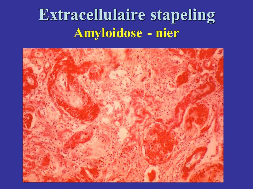 Extracellulaire stapeling Extracellulaire stapeling Amyloidose - nier