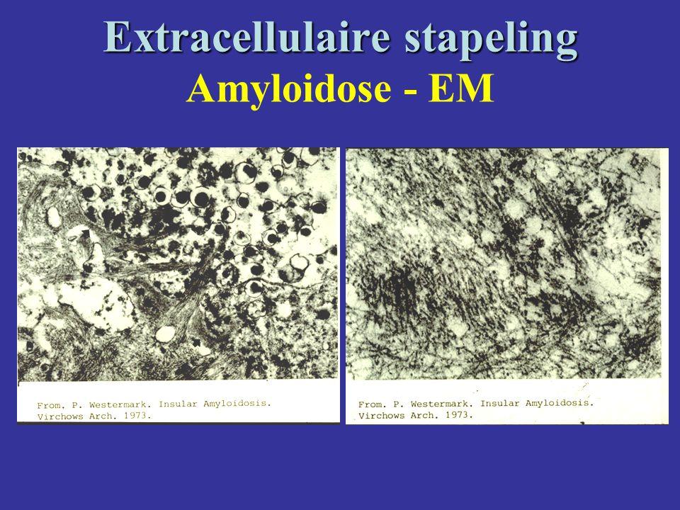 Extracellulaire stapeling Extracellulaire stapeling Amyloidose - EM