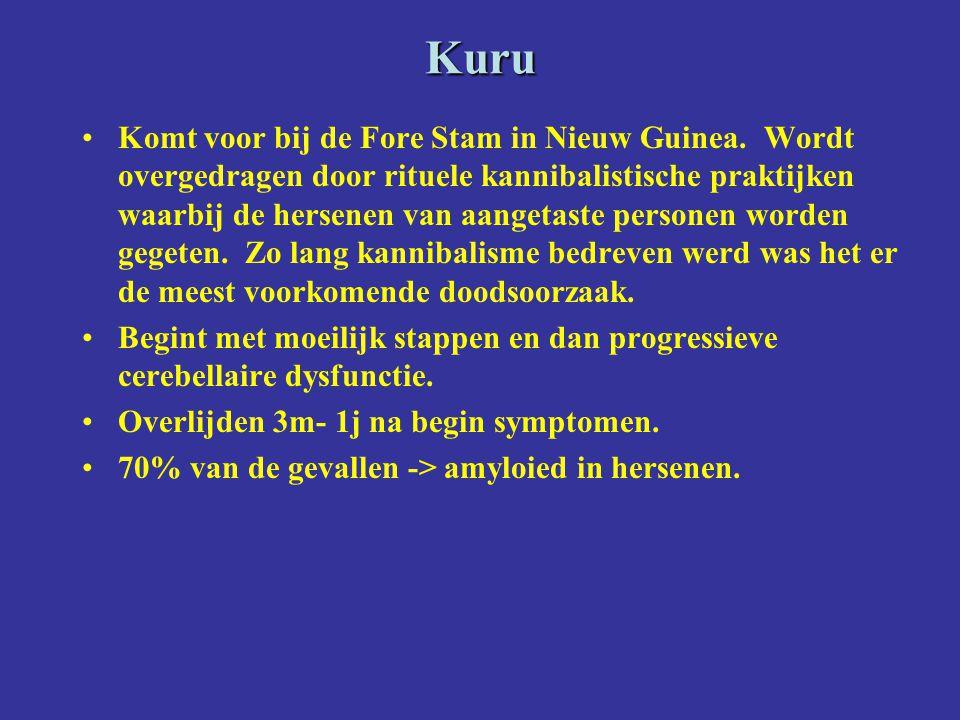 Kuru Komt voor bij de Fore Stam in Nieuw Guinea. Wordt overgedragen door rituele kannibalistische praktijken waarbij de hersenen van aangetaste person