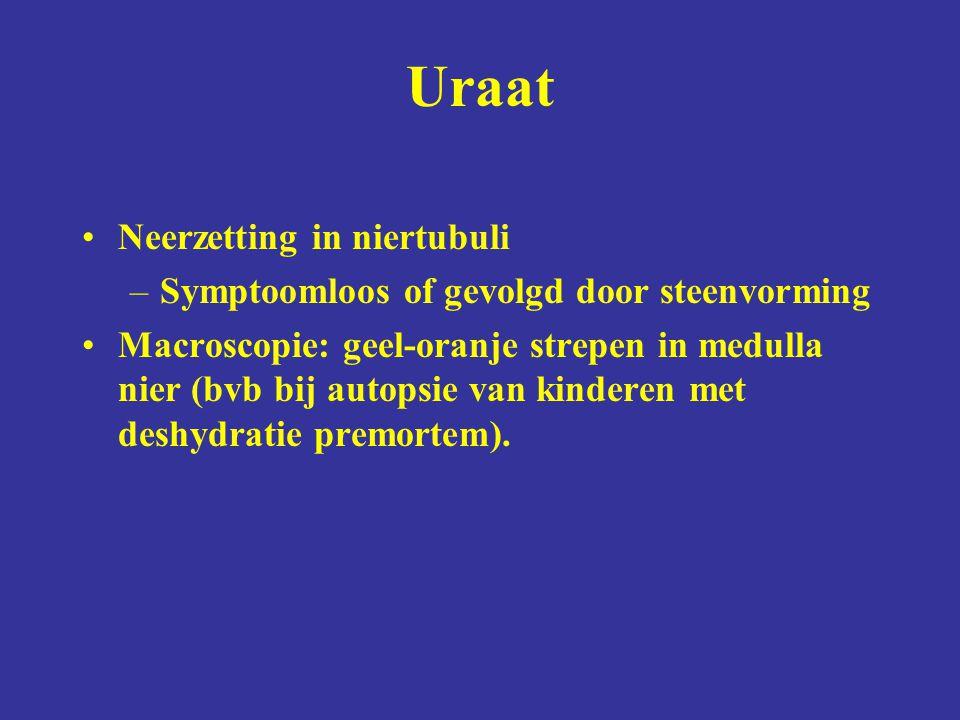 Neerzetting in niertubuli –Symptoomloos of gevolgd door steenvorming Macroscopie: geel-oranje strepen in medulla nier (bvb bij autopsie van kinderen m