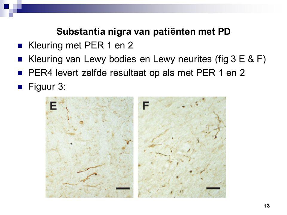 13 Substantia nigra van patiënten met PD Kleuring met PER 1 en 2 Kleuring van Lewy bodies en Lewy neurites (fig 3 E & F) PER4 levert zelfde resultaat op als met PER 1 en 2 Figuur 3: