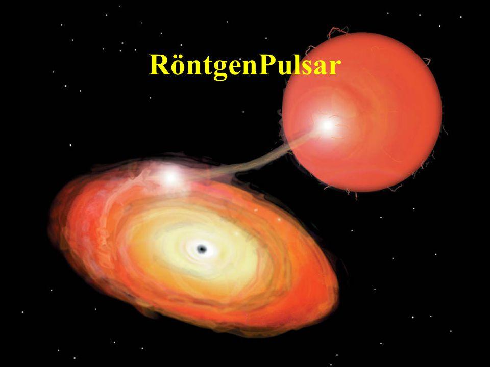 43 RöntgenPulsar