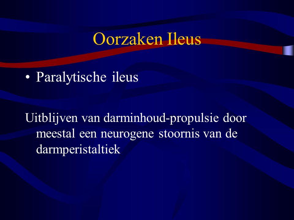 Oorzaken Ileus Paralytische ileus Uitblijven van darminhoud-propulsie door meestal een neurogene stoornis van de darmperistaltiek