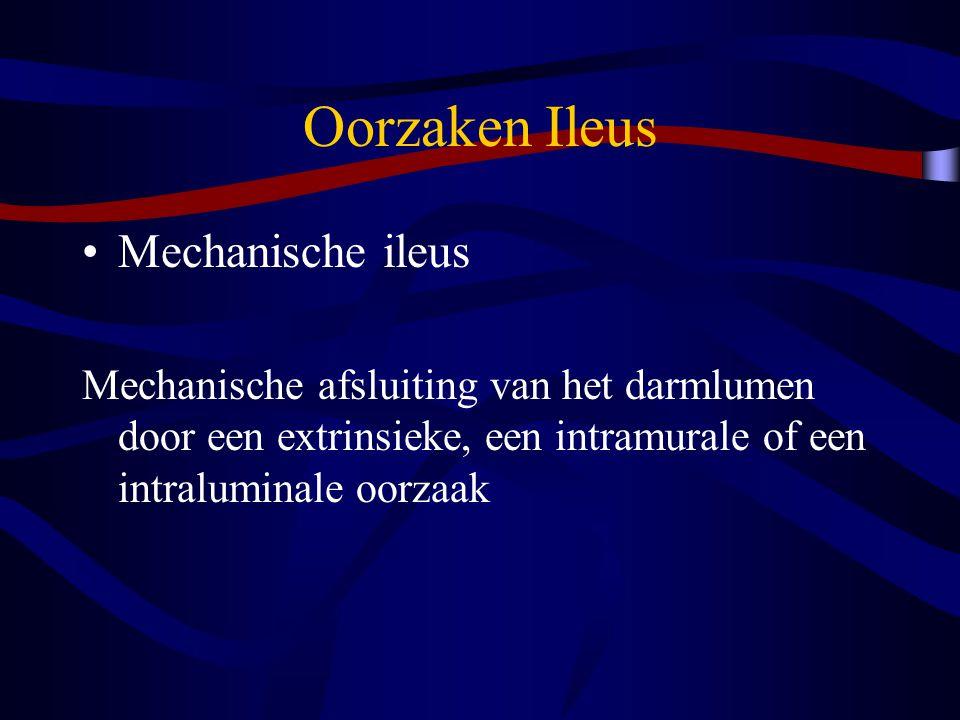 Oorzaken Ileus Mechanische ileus Mechanische afsluiting van het darmlumen door een extrinsieke, een intramurale of een intraluminale oorzaak