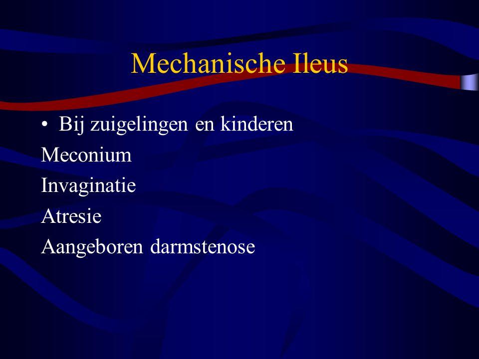 Mechanische Ileus Bij volwassenen dunne darm Vergroeiingen (postoperatief) Herniae Inflammatoire ziekten (M.