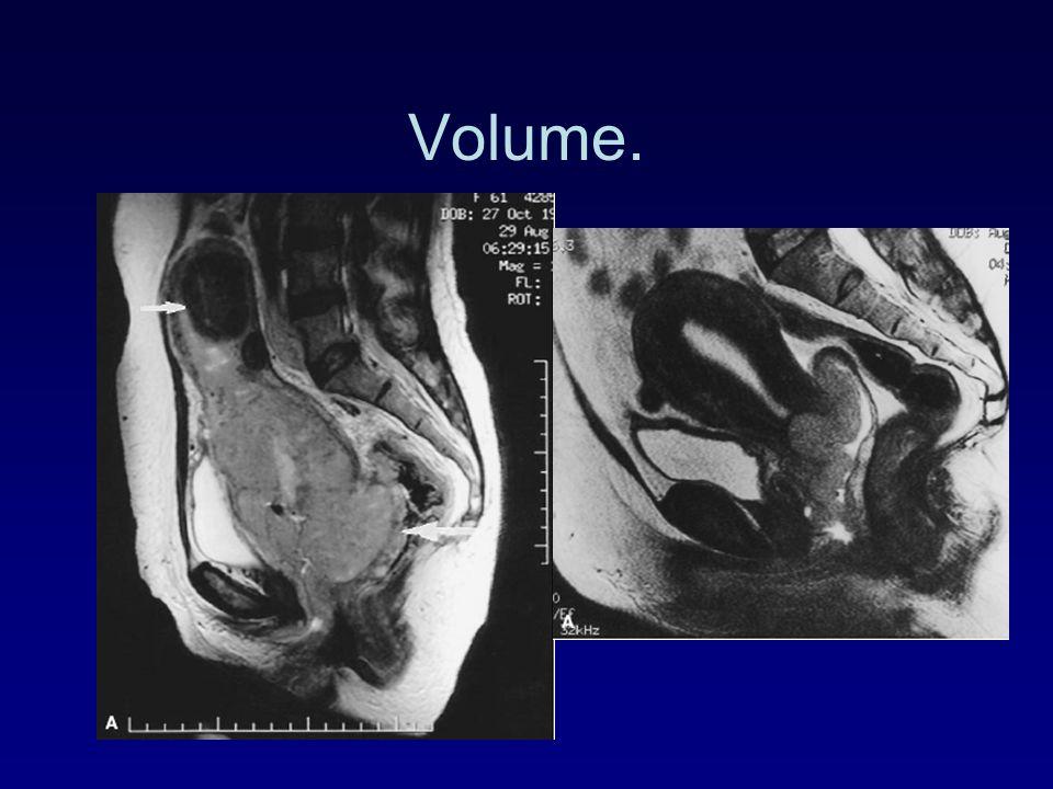 Resultaten endometrium. Stadium5 jaars overleving I86 % II66 % III44 % IV14 %