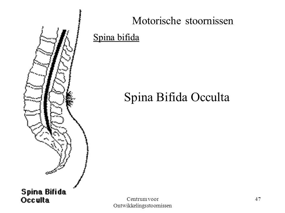 08-03-2001Centrum voor Ontwikkelingsstoornissen 47 Motorische stoornissen Spina bifida Spina Bifida Occulta
