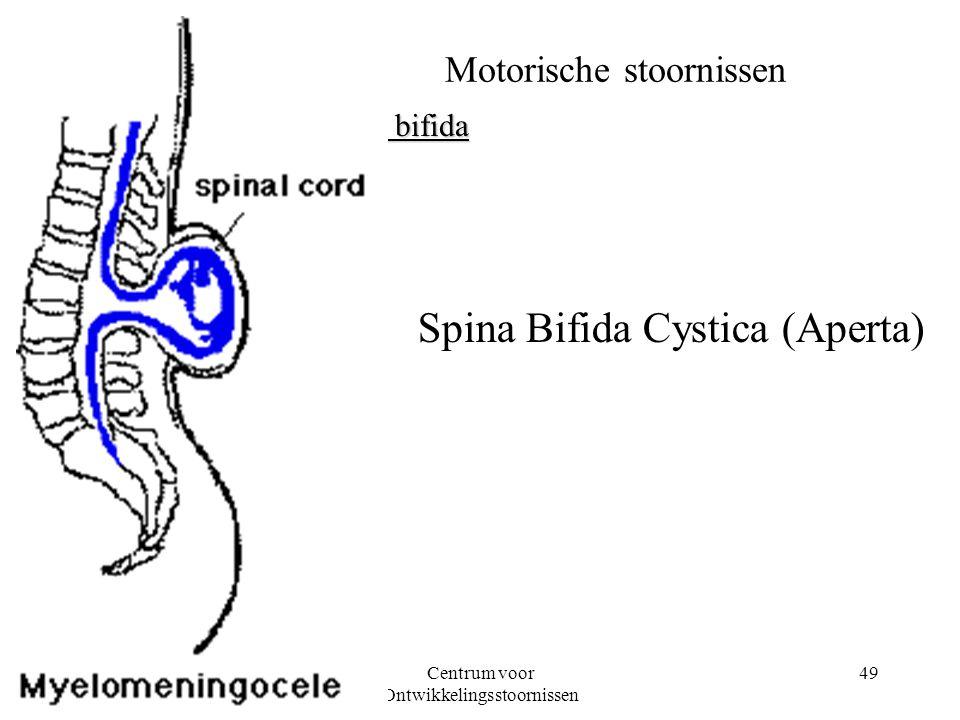 08-03-2001Centrum voor Ontwikkelingsstoornissen 49 Motorische stoornissen Spina bifida Spina Bifida Cystica (Aperta)