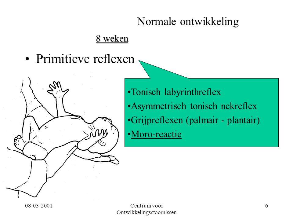 08-03-2001Centrum voor Ontwikkelingsstoornissen 6 Normale ontwikkeling Primitieve reflexen 8 weken Tonisch labyrinthreflex Asymmetrisch tonisch nekref