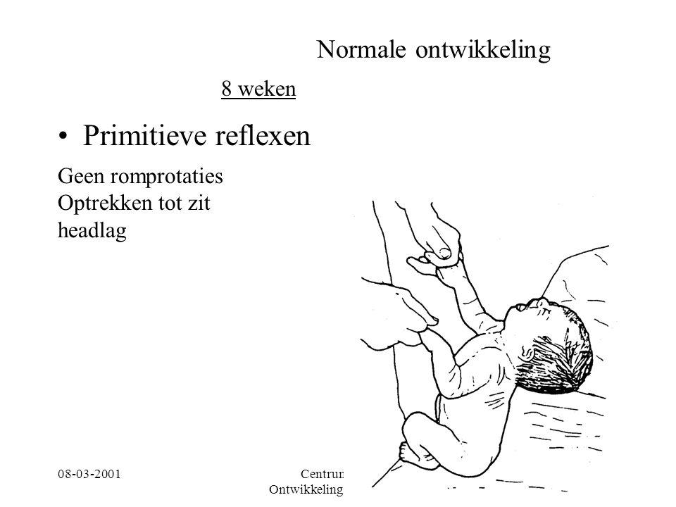 08-03-2001Centrum voor Ontwikkelingsstoornissen 8 Normale ontwikkeling Primitieve reflexen 8 weken Geen romprotaties Optrekken tot zit headlag