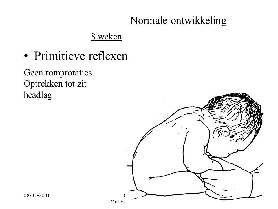 08-03-2001Centrum voor Ontwikkelingsstoornissen 9 Normale ontwikkeling Primitieve reflexen 8 weken Geen romprotaties Optrekken tot zit headlag