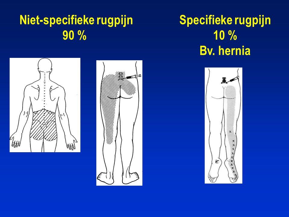 Niet-specifieke rugpijn 90 % Specifieke rugpijn 10 % Bv. hernia