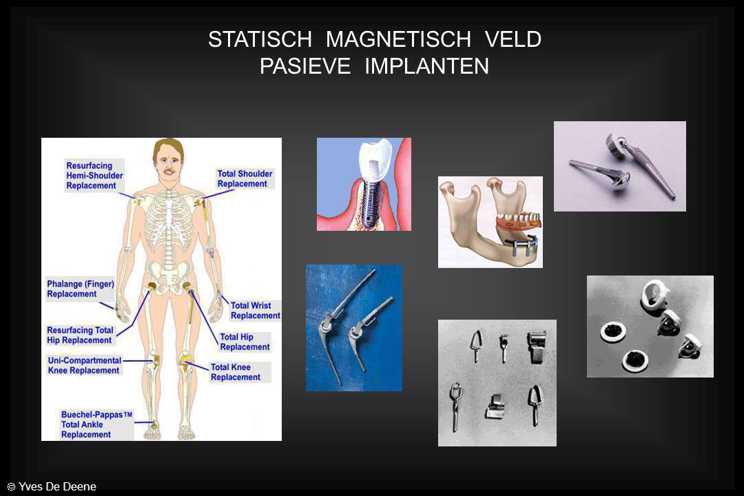 STATISCH MAGNETISCH VELD PASIEVE IMPLANTEN  Yves De Deene