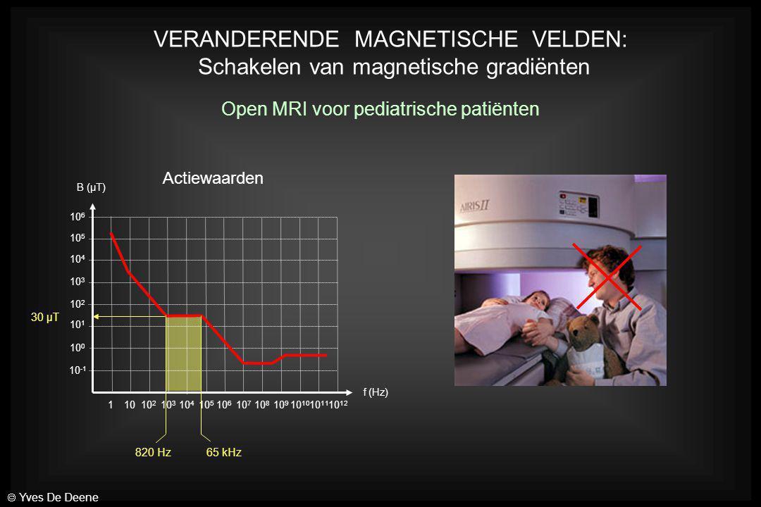 VERANDERENDE MAGNETISCHE VELDEN: Schakelen van magnetische gradiënten Open MRI voor pediatrische patiënten 10 -1 10 0 10 1 10 2 10 3 10 4 10 5 10 6 11