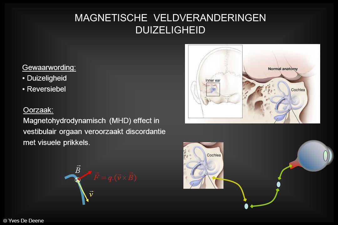 MAGNETISCHE VELDVERANDERINGEN DUIZELIGHEID Gewaarwording: Duizeligheid Reversiebel Oorzaak: Magnetohydrodynamisch (MHD) effect in vestibulair orgaan v